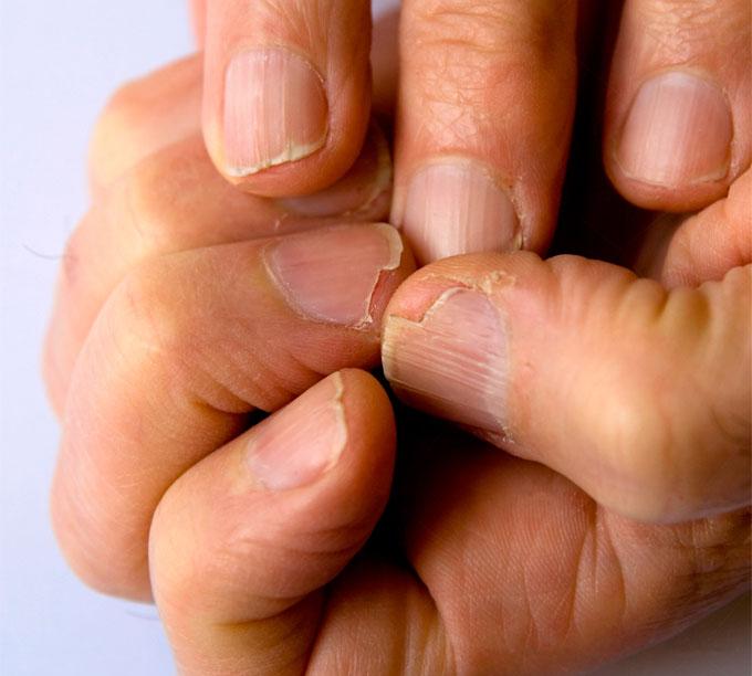 unghii-ingrosate